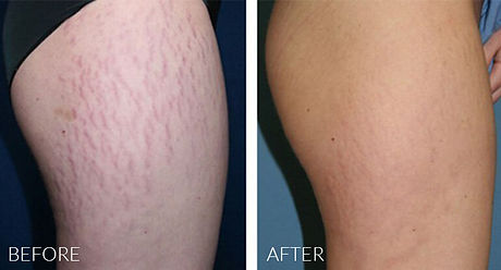 prp-strech-marks-removal-before-after.jp