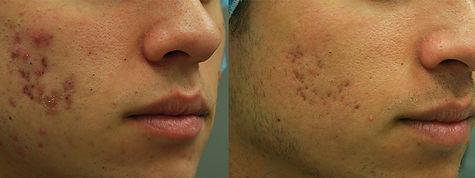 invasix-lumecca-photofacial.jpg