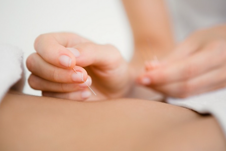 Dry needling for persistent pain and tension