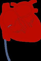 Representação de uma ablação com o catéter posicionado no interior do coração.
