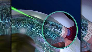 raio laser na malha trabecular, trabeculoplastia