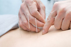 AC Health Center Acupuncture