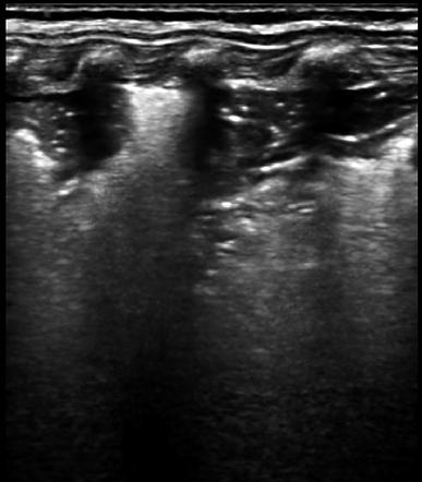 Lung-ultrasound-fi-ndings-of-pneumonia-i