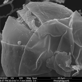 Arbuscular mycorrhizal fungal spore (Rhizophagus irregularis)