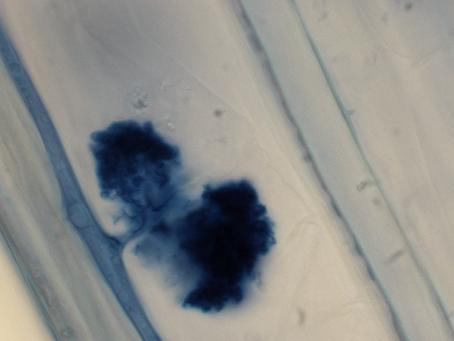 Ancient fungi: Arbuscular Mycorrhizal fungi