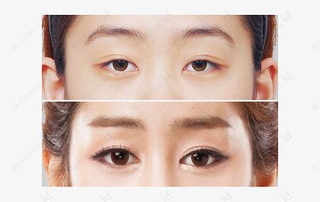 ตา 4.jpg