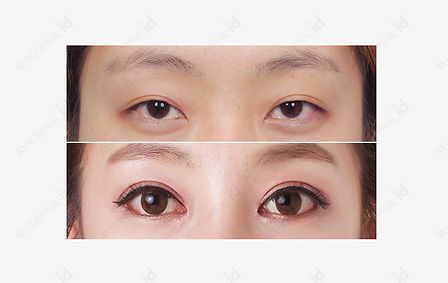 ตา 2.jpg