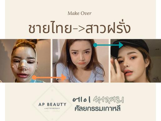 (รีวิวศัลยกรรม) Amazing เมื่อชายไทย อยากกลายเป็นสาวฝรั่ง ฝีมือศัลยแพทย์ขั้นเทพ