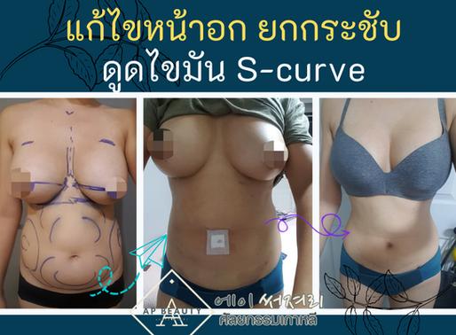 (รีวิวศัลยกรรม) งานแก้ไขหน้าอก และดูดไขมัน S-curve รูปร่างใหม่ในฝัน ฝีมือคุณหมอฮวังดงยอน