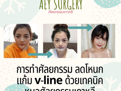 (รีวิวศัลยกรรม) การทำศัลยกรรม ลดโหนกแก้ม v-line ด้วยเทคนิค หมอศัลยกรรมเกาหลี