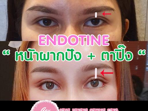 [รีวิวศัลยกรรม] มหัศจรรย์แห่งเอนโดไทน์ ยกกระชับหน้าผาก ดึงหนังตาตก หน้าผากกลมวอลลุ่มสวย