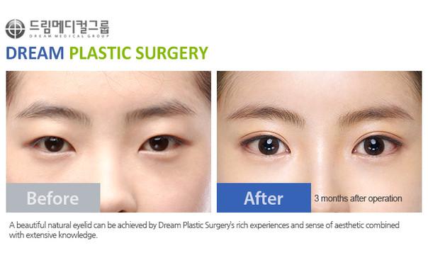Dream Plastic Surgery