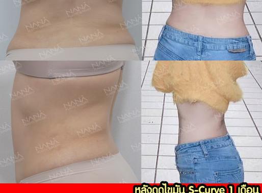 [ รีวิวศัลยกรรม ] การดูดไขมันแบบ S curve เอวในฝันของสาวๆค่ะ