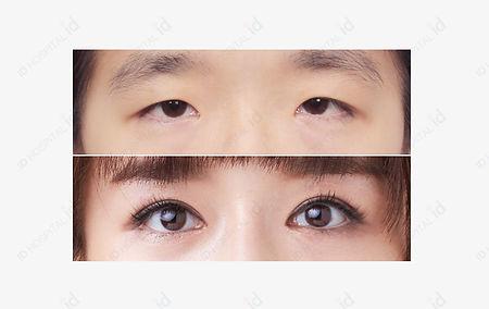 ตา 1.jpg