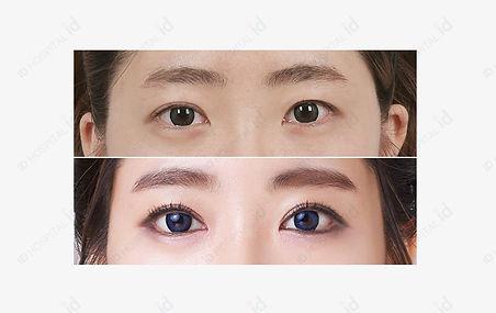 ตา 3.jpg