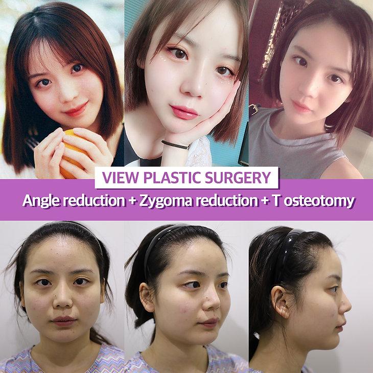 vline-surgery-review_view-clinic_korea.j