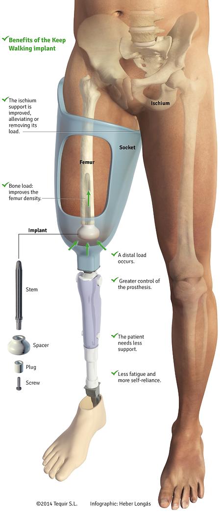 Keep Walking Femoral Implant.png