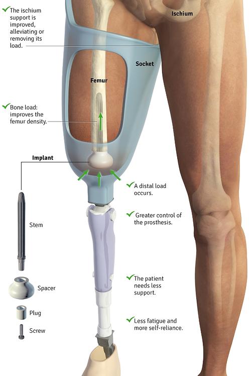 Keep Walking Femoral Implant