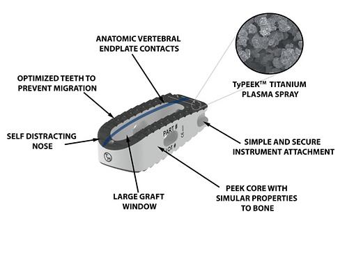 Posterior/Oblique Lumbar Interbody Fusion (PLIF/OLIF)