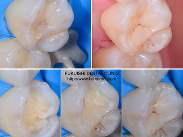 むし歯治療:MIとダイレクトボンディング そして・・・
