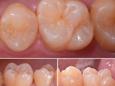 むし歯の治療は最小限の切削で+α