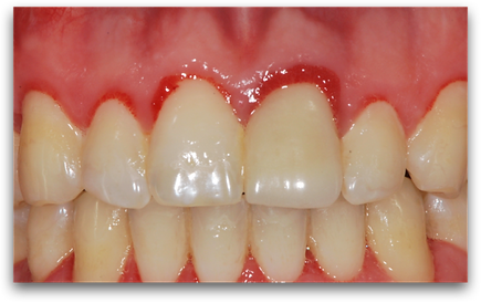 Gingivitis of front teeth