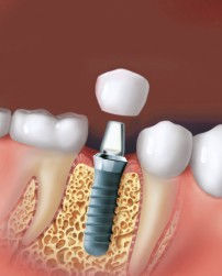 Crown cemented on implant