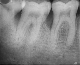 X-ray showing bone loss from periodontal disease