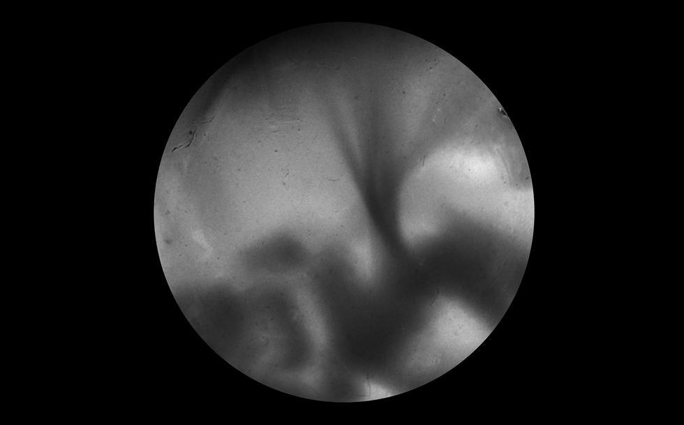 Vaginograph