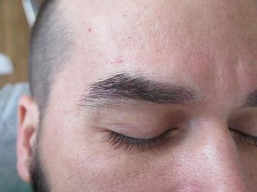 men's brow_1b.JPG