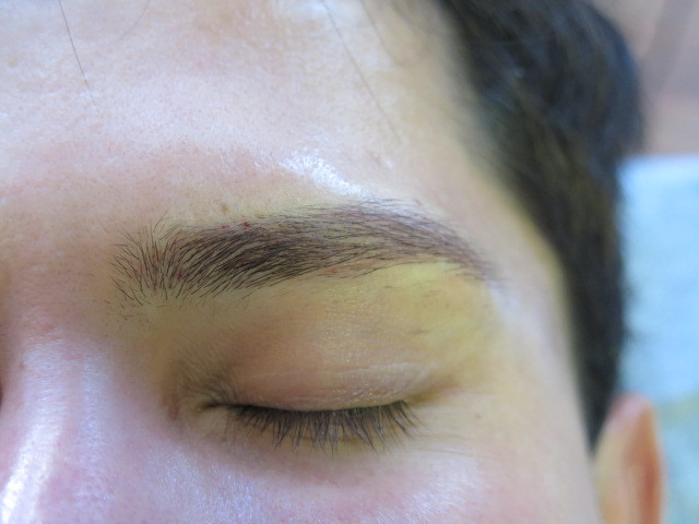 Men's eyebrow - right after the tattoo