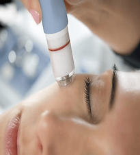 Microdermabrasion300x330.png