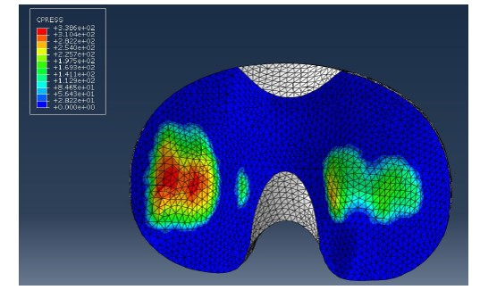 KNEE CMM wear map