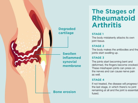A Recap of Rheumatoid Arthritis
