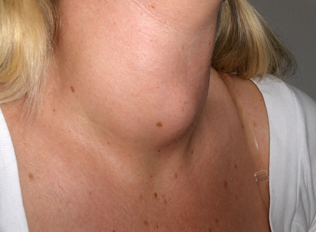 The Thyroid Gland: Form and Function