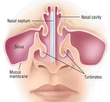 What is the nasal septum? What is a deviated septum?