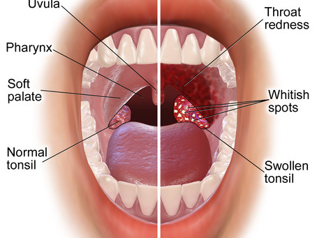 HPV related throat cancer