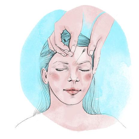 Akupunktur2.jpg