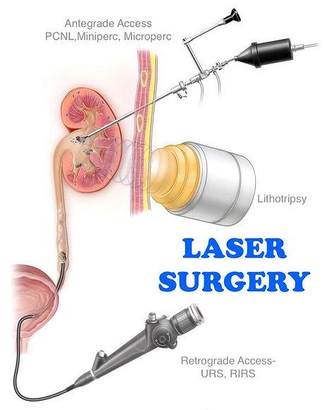Stone Surgery.jpg
