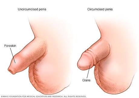 circumcised .jpg