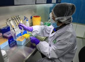 Pela 1ª vez desde abril, Brasil apresenta contágio de coronavírus em desaceleração