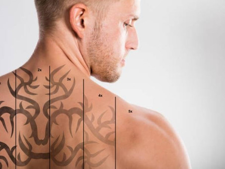 Tattoo Removal- What to Look for in a Tattoo Removal Shop