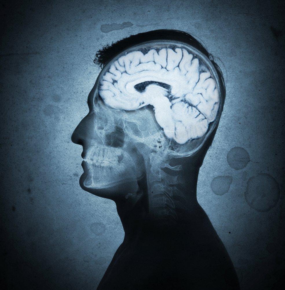 cerveau-en-sante-facons-muscler.jpg