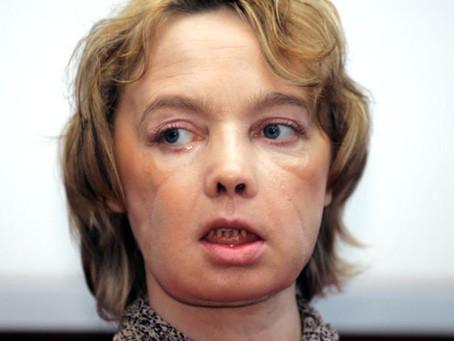 Ha muerto la mujer que recibió el primer trasplante de cara tras una década de medicación