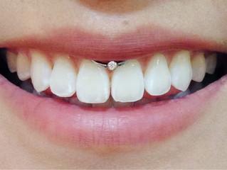 Piercing smile: estiloso ou perigoso?