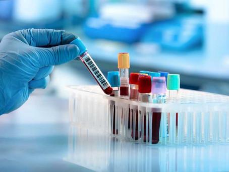 COVID-19 и кръвни съсиреци. Какво трябва да знаем?