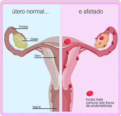 layout_entenda-a-endometriose.png