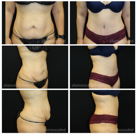 3 MONTHS POST TUMMY TUCK SURGERY