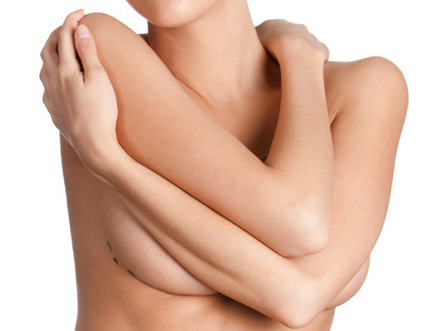 4 Types of Breast Augmentation Incisions