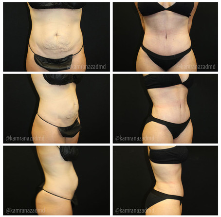 4 MONTHS POST TUMMY TUCK SURGERY
